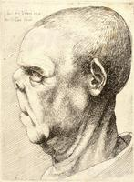 Man with flattened nose and elongated upper lip