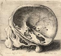 Skull with the left side of cranium removed